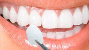 Tanden bleken bij de tandarts