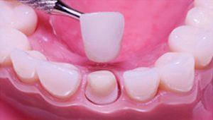 Kroon bij tandarts laten zetten