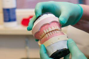 Prothese voor het gebit, oplossing voor kaakgewrichtsproblemen