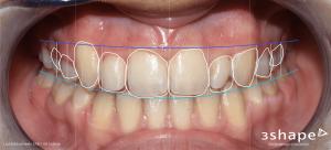 Digital smile design (DSD)