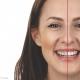 Esthetische tandheelkunde bij Kiesz Oosterhout